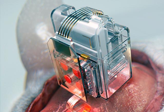 dispositivo que pode manipular células cerebrais pelo celular