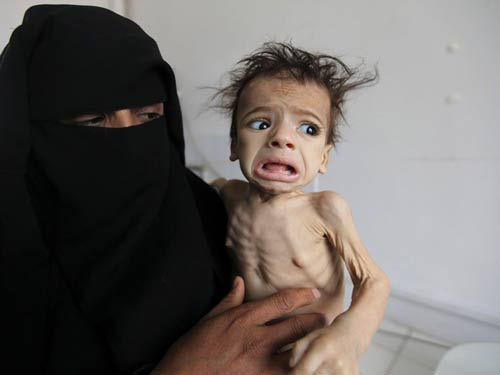 Yemeni starved kid held by his helpless mother