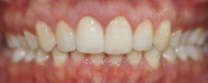 After Invisalign Melbourne