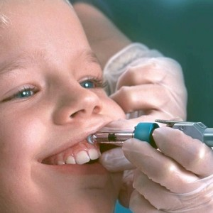 Pain free dentist - Needle free injection
