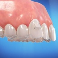 Invisalign-smart-track-precise-fit