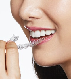 South Melbourne Invisalign