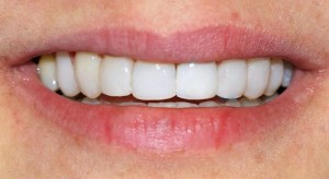 After Resin Veneers