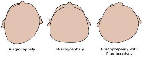plagiocephaly