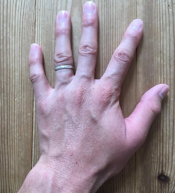 アシナガバチに刺されて腫れた左手(刺されてすぐ)2
