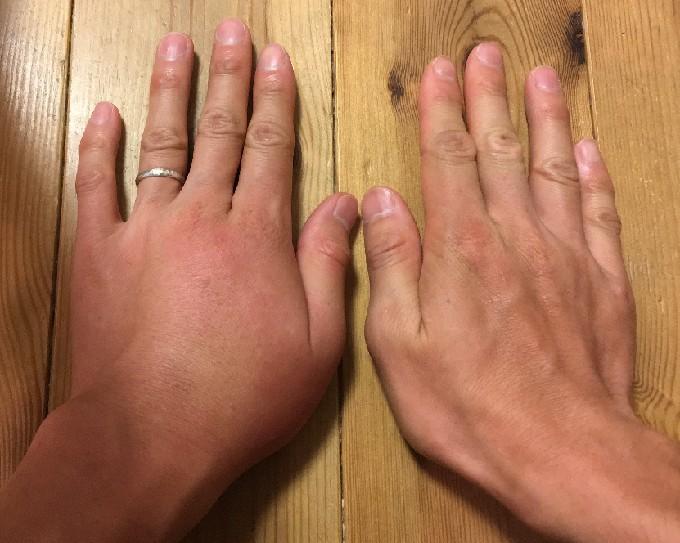 二次感染で腫れた手の比較