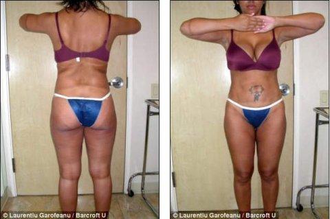 FOTOS: Cirujano plástico crea la esposa perfecta, ve el antes y después