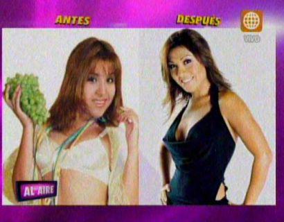 Antes y después: Cirugías de Tula Rodríguez costaron US$ 11,500 (Video)