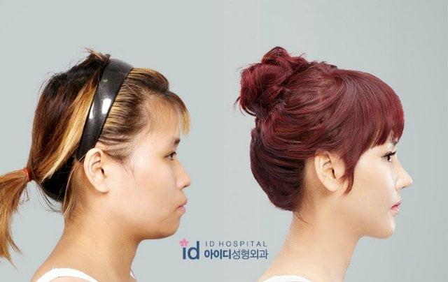 [VIDEO] Mira como un reality transformó a joven coreana con cirugía