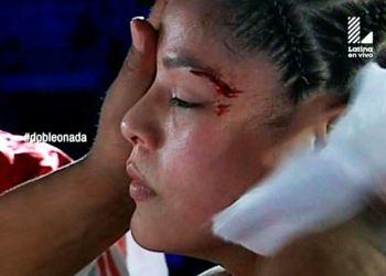 Linda Lecca retuvo su título mundial al suspenderse la pelea producto de un cabezazo que recibió de la venezolana Alvarez.