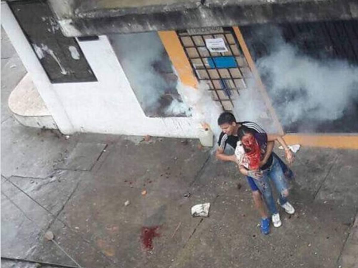 En la localidad de Colón habrían hasta 60 afectados durante las protestas de este 15 de mayo