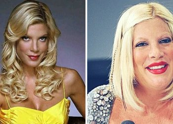 Actriz de 'Beverly Hills 90210' se deformó la cara con botox