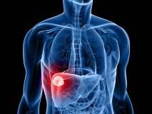 Hay casos remotos de transmisión de cáncer post trasplante de órganos