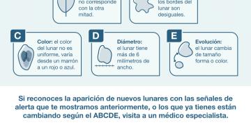 Lunares peligrosos: el ABCDE de la prevención del cáncer a la piel