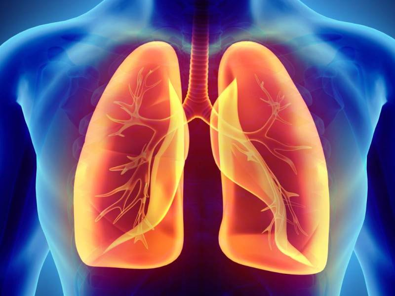 Cáncer al pulmón