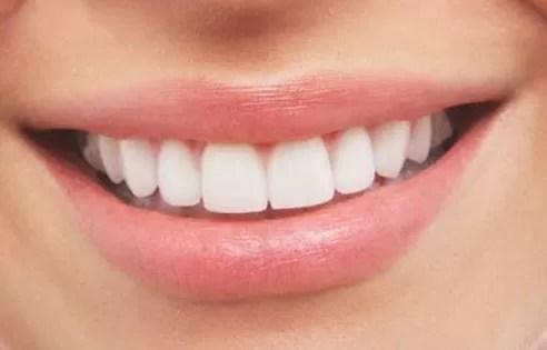 Una mala salud bucal puede ocasionar la muerte