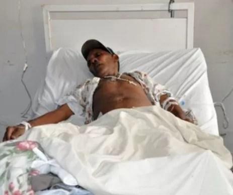 Venezuela registra nuevos casos de fiebre chikunguña
