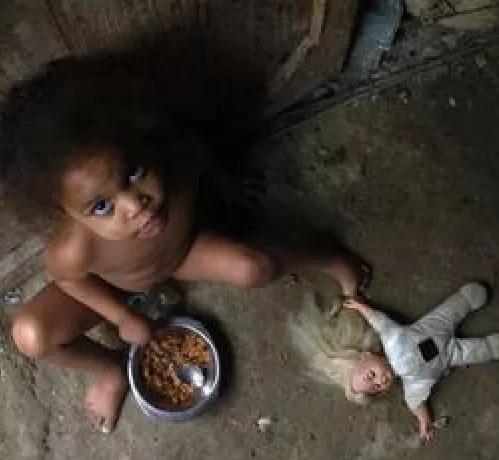 RD: tercer país con mayor progreso en reducción de la desnutrición infantil  según estudio