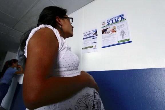 Estudio confirma la presencia del virus Zika en el cerebro de bebés en gestación