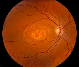 Foundation Fighting Blindness Clinical Research Institute Hosted Workshop for ProgStar, Largest Natural History Study for Stardardt Disease Ever Launched