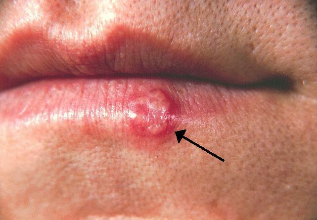 Penyakit Herpes