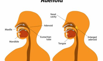 Illustration of enlarged adenoid. Adenoidectomy.
