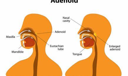 Illustration of enlarged adenoid. Adenoidectomy.