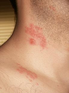 首と肩の帯状疱疹 Wikipediaより引用