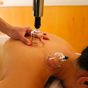 Cupping Benefits & Common Questions