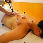 the history of cupping