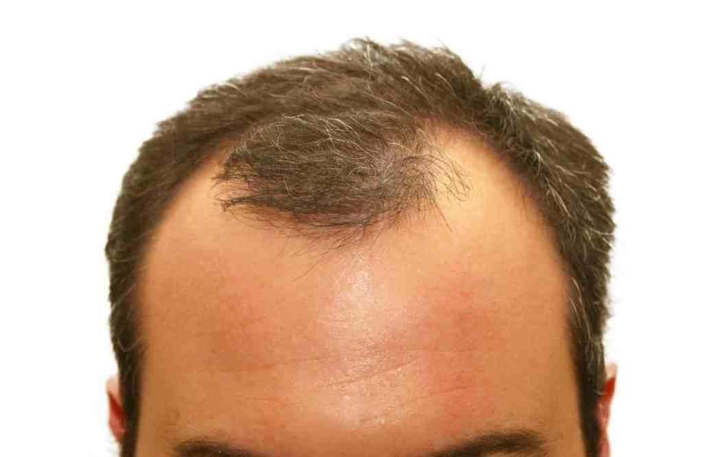 lupino blanco, beneficios del lupino blanco, propiedades del lupino blanco, propiedades del lupino blanco para el cabello, tratamiento natural para el cabello, tratamientos caseros para el crecimiento del cabello, tratamiento para la caida del cabello, tratamiento para la caída y crecimiento del cabello