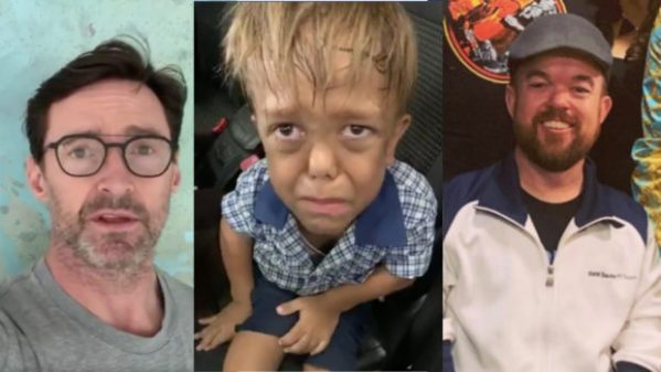 Bullied 9-year-old kid with dwarfism gains celebs