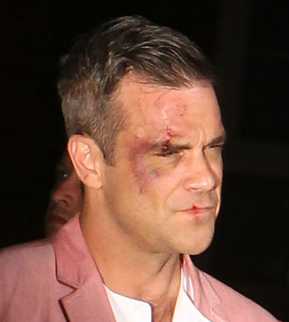 Gary Barlow Wedding Ring: WATCH: Robbie Williams Gets Beaten Up In 'Candy' Video