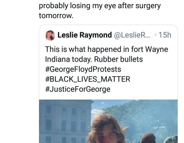 """Man shot at by police loose one eye during """"George Floyd"""" protest"""