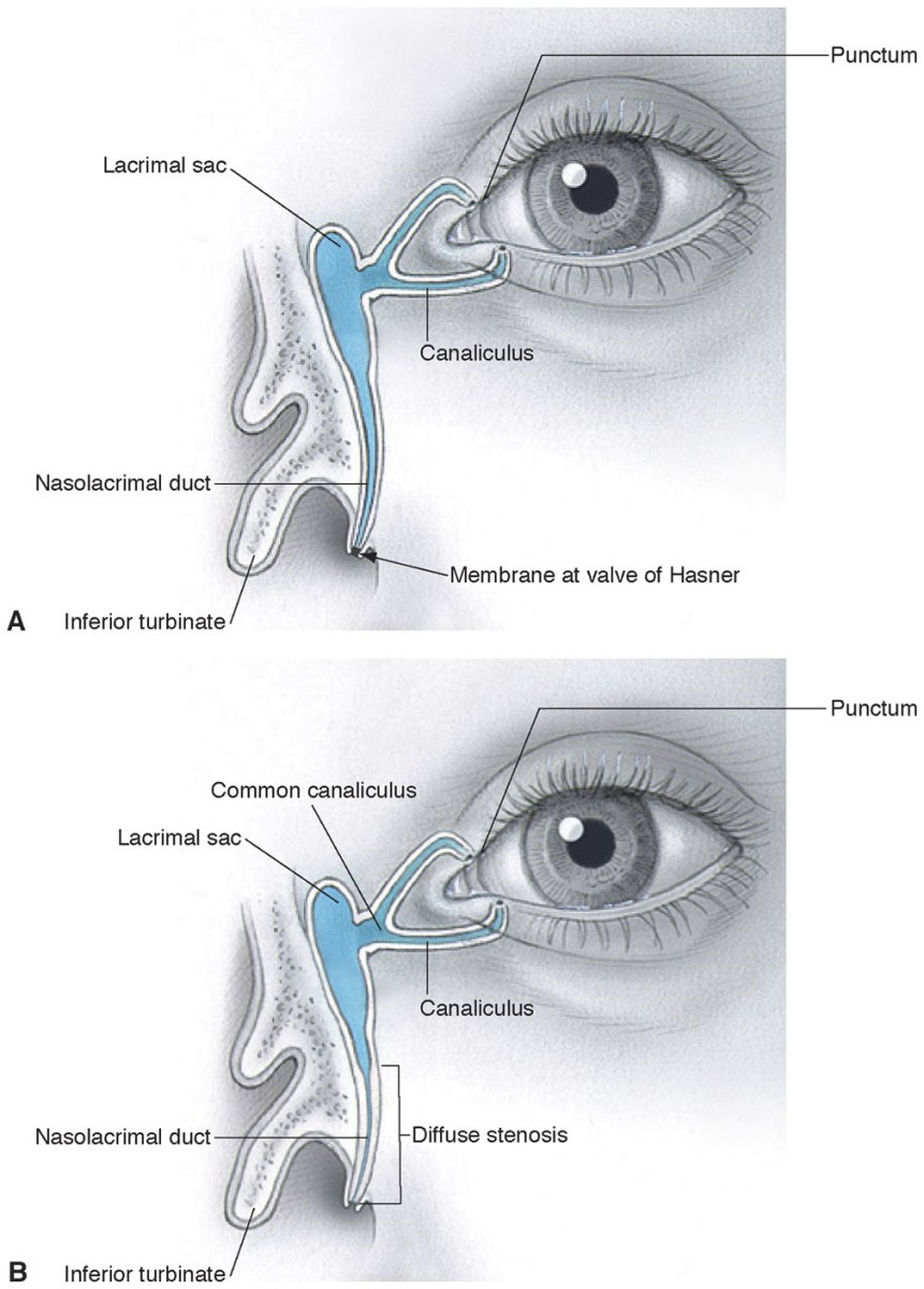 Nasolacrimal duct obstruction nldo in adults nursing essay Research ...