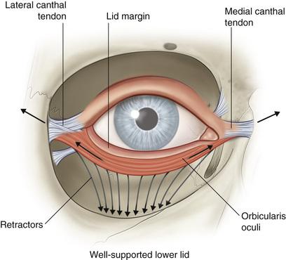 Lower Eyelid and Eyelash Malpositions | Ento Key