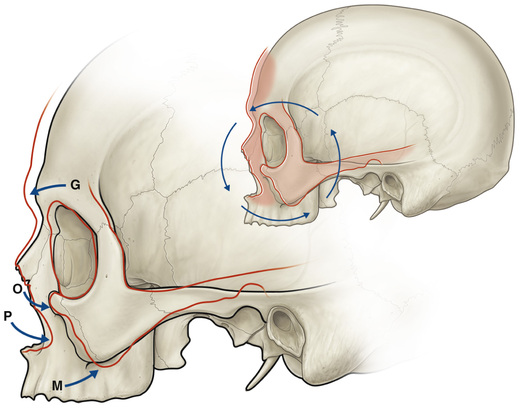 Facial bone aging