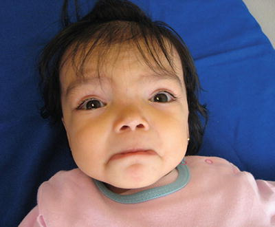 Oculofacial Manifestations of Chromosomal Aberrations | Ento Key