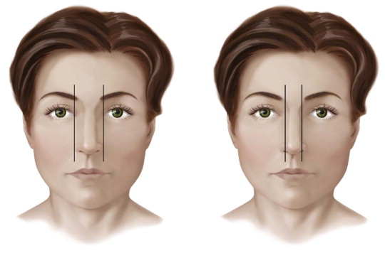 Nasal Osteotomies | Ento Key