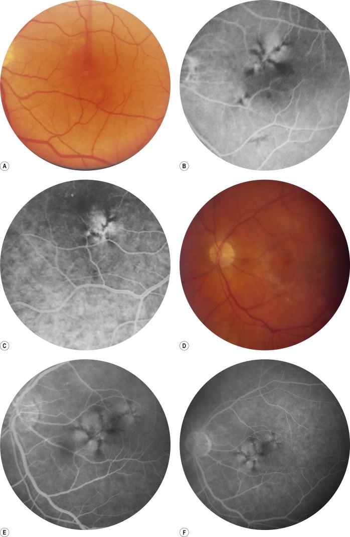 Dr. Diag - Weill-Marchesani szindróma, Myopia dystrophia