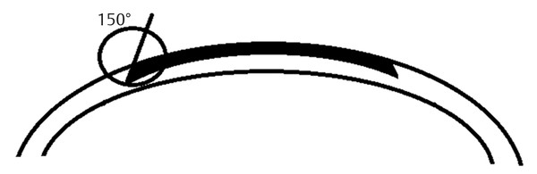 978-1-62623-236-5_c006_f004.tif