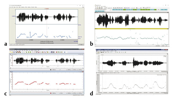 Example screenshots of sound wave display and associated fundamental frequency contour in (a) Praat, (b) SpeechTool, (c) Multi-Speech, and (d) lingWaves.