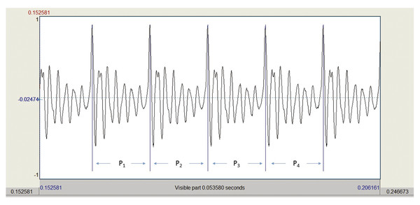 A portion of a highly periodic voice waveform. Four cycles of vibration are shown. The time it takes to complete a cycle of vibrating is referred to as the period (P). The inverse of the period (in se