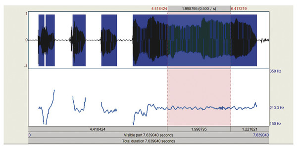 """Adult female (32 years old) with hyperfunctional, strained voice producing the sustained vowel /a/ (""""ahhh""""). Measures from a central portion of the vowel production showed a mean F0 = 213.28 Hz and th"""