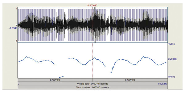 """Adult female (47 years old) with severe tremor and intermittent roughness secondary to adductor spasmodic dysphonia producing the sustained vowel /a/ (""""ahhh""""). Measures from a central portion of the v"""