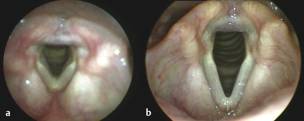 Images taken from the same patient only minutes apart with a flexible endoscope (a) and a rigid endoscope (b).