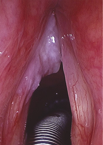 Example of a T1 glottic cancer extending to the anterior commissure.