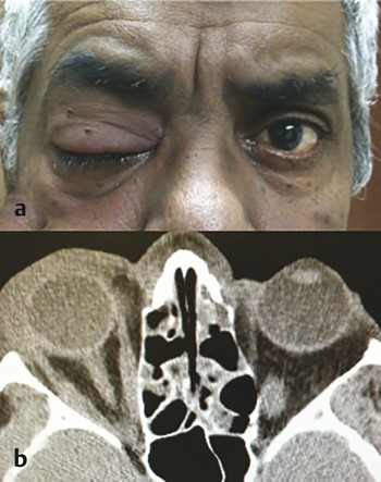 Nonspecific orbital inflammation of the right lacrimal gland. (a) Periorbital erythema, edema, and ptosis. (b) Axial noncontrast CT (computed tomography) showing enlarged right lacrimal gland and over