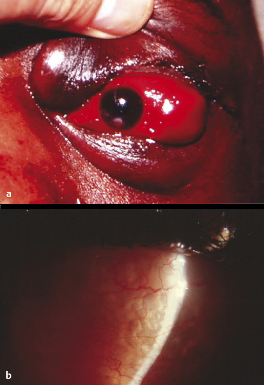 (a) Postoperative orbital hematoma characterized by a tense orbit, reduced eye movements, and a large subconjunctival hemorrhage without visible posterior extent. (b) Multiple subconjunctival air bubb