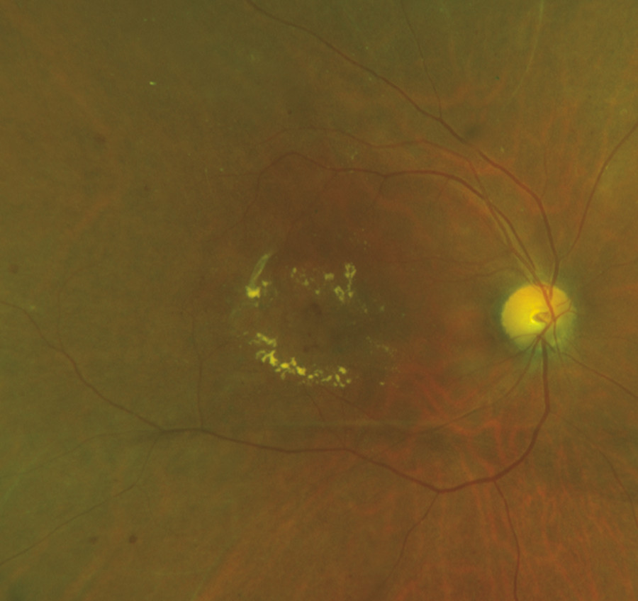 Fundus photograph of moderate nonproliferative diabetic retinopathy associated with diabetic macular edema demonstrating a circinate ring of hard exudates surrounding a group of microaneurysms.